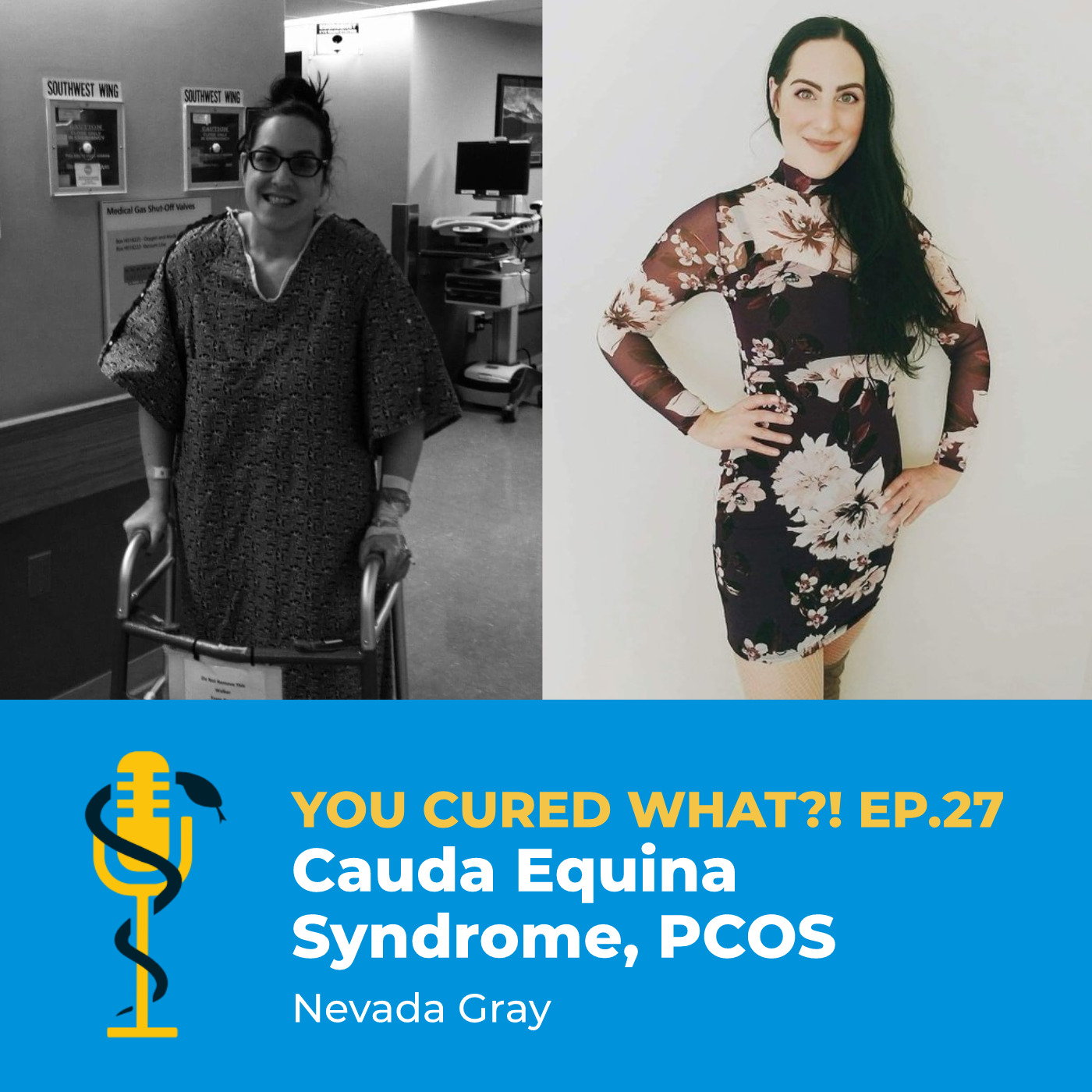 Ep.27: Cauda Equina Syndrome, PCOS with Nevada Gray
